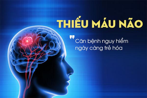 Thiếu máu não là gì? 1