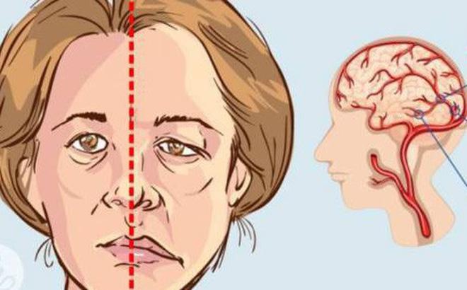 Tai biến mạch máu não diễn biến đột ngột, di chứng nặng nề 1