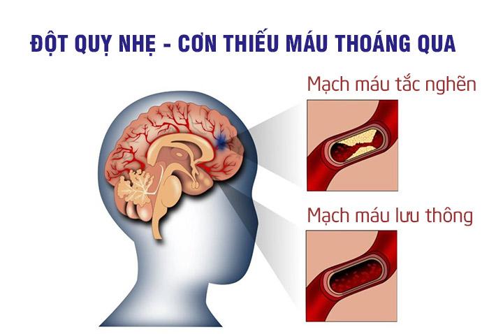Nguyên nhân gây ra đột quỵ nhẹ (TIA)? 1