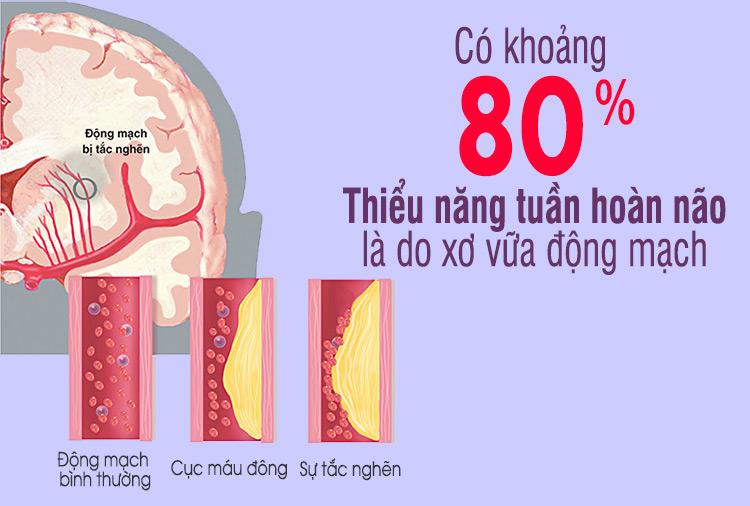 Nguyên nhân chủ yếu gây ra thiểu năng tuần hoàn não là gì? 1