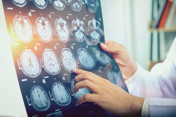 Điều trị tai biến mạch máu não 1