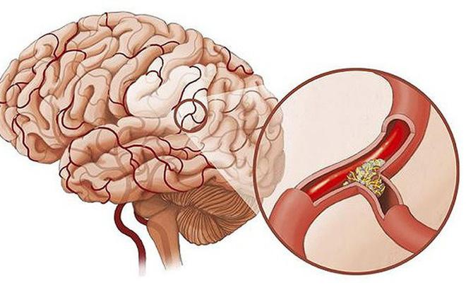 Cẩn trọng cơn thiếu máu não cấp - nguy cơ đột quỵ cao nhưng nhiều người bỏ qua 1
