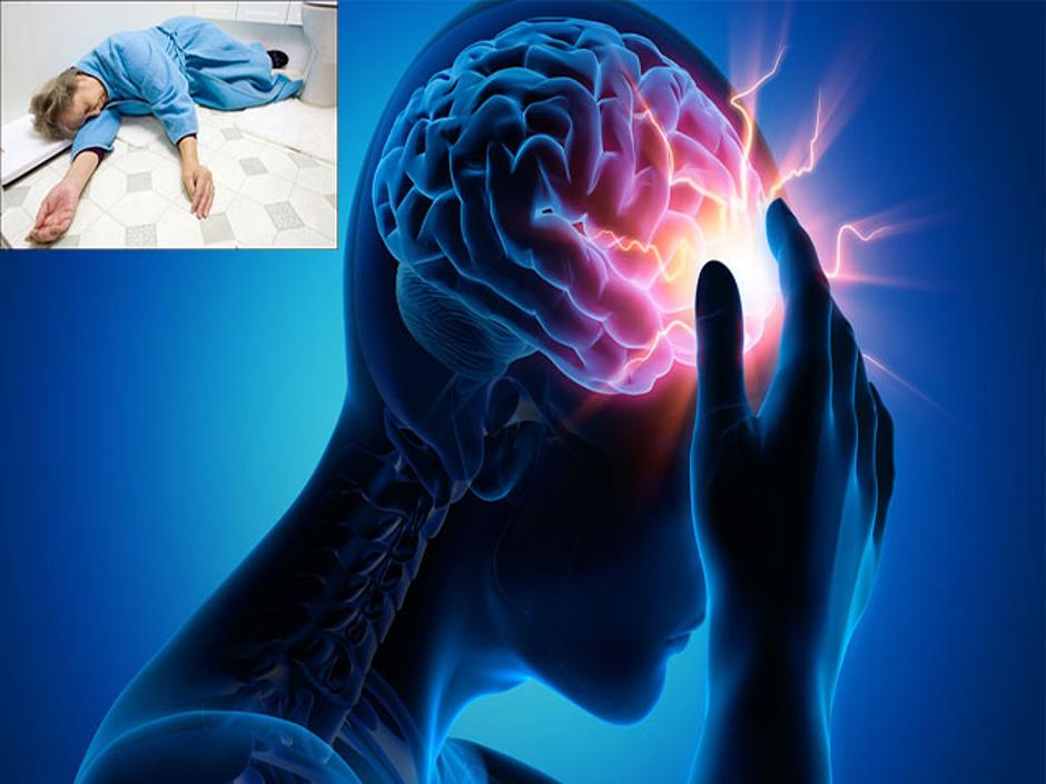 Phân loại tai biến mạch máu não 1